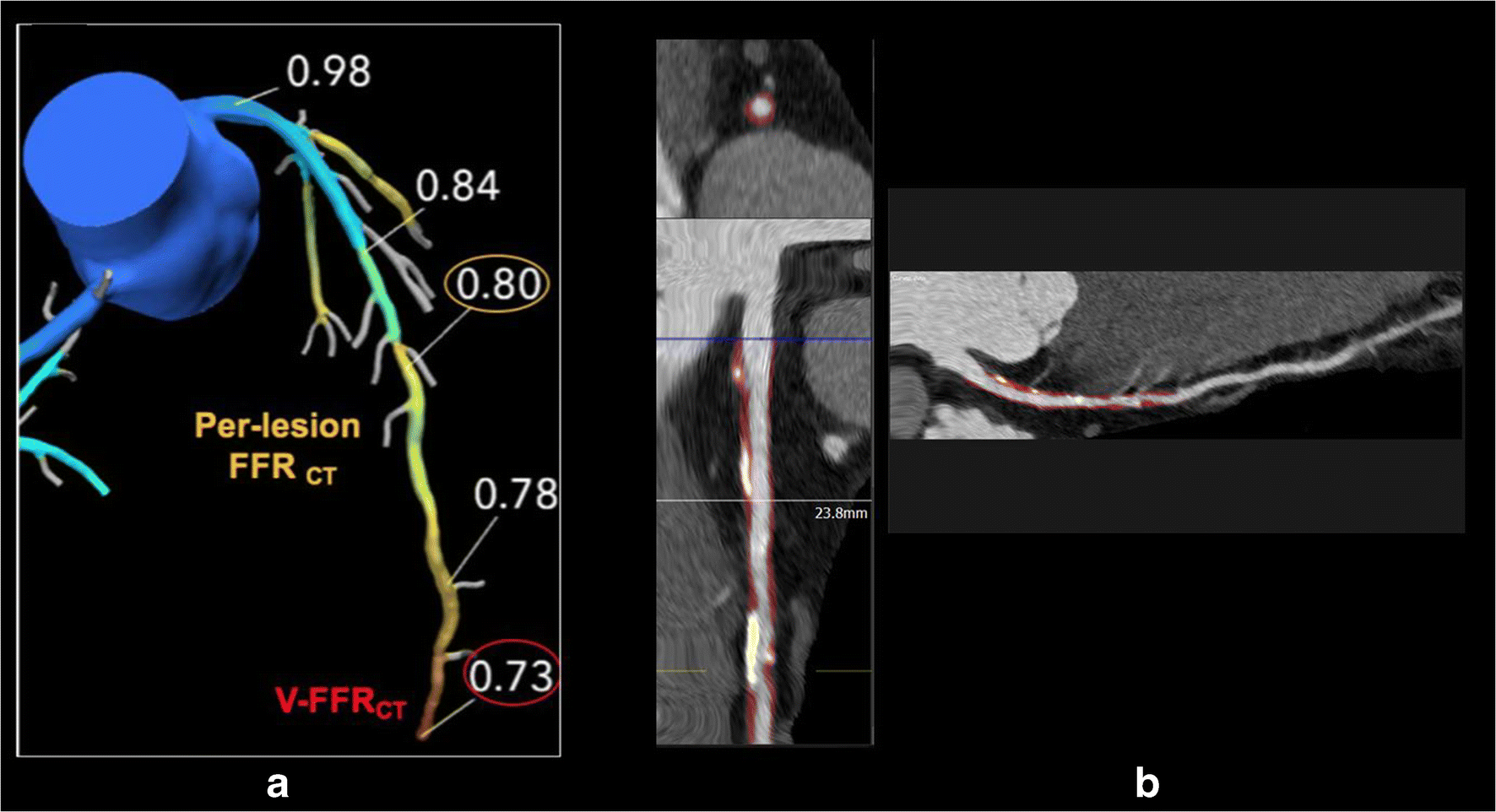 Cardiac CT: Technological Advances in Hardware, Software