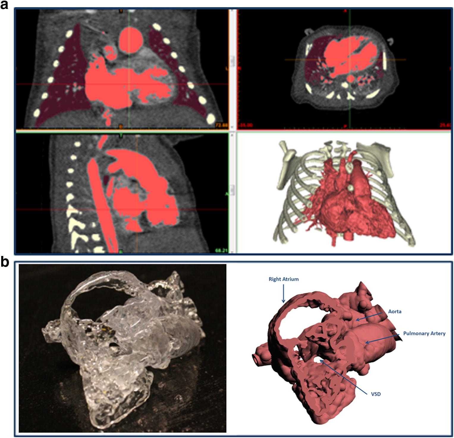 photo relating to Vsd 190 Printable Form titled Cardiovascular CT within just Cyanotic Congenital Centre Condition