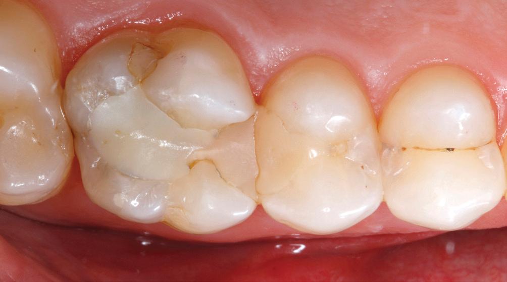 Großzügig Zahn 14 Anatomie Fotos - Menschliche Anatomie Bilder ...