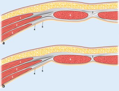 Anatomie der Bauchdecke | SpringerLink