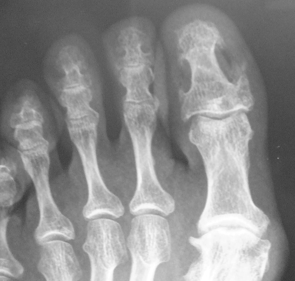 Krankheiten der Nägel | SpringerLink