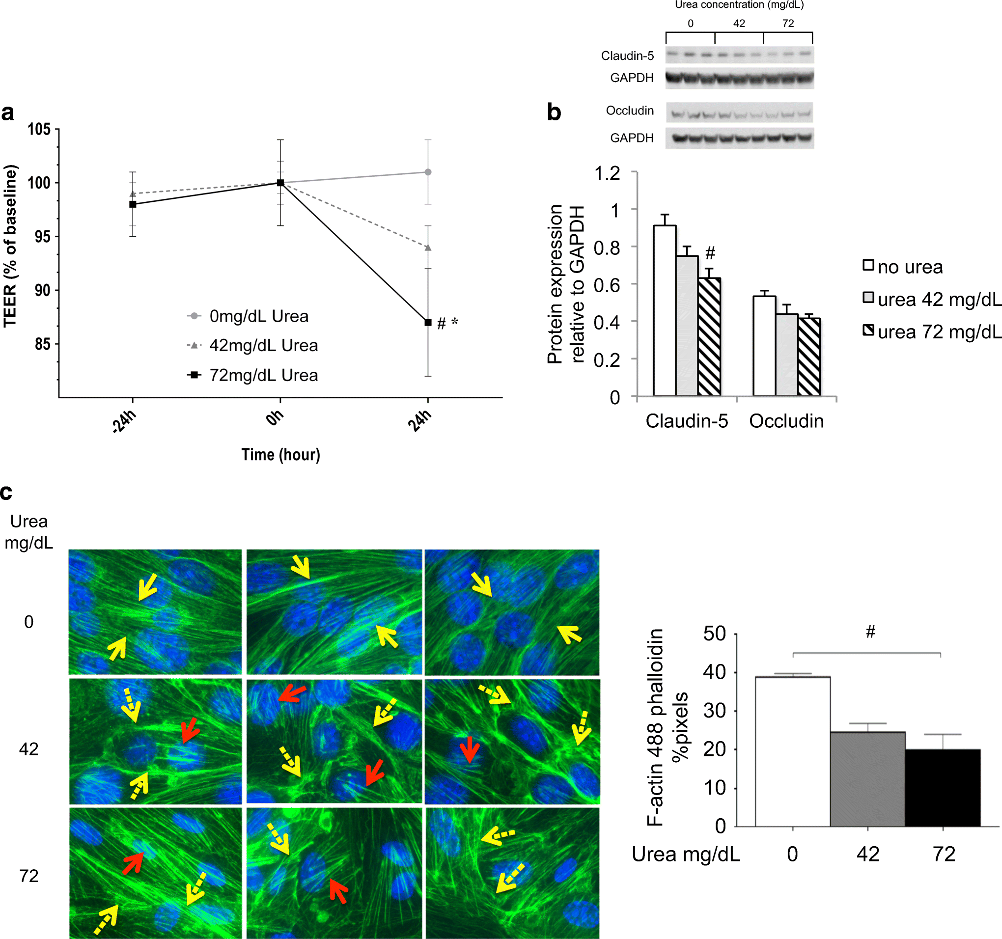 Chronic Kidney Disease Increases Cerebral Microbleeds in Mouse and