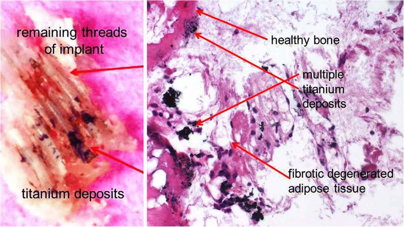 Titanium implants and silent inflammation in jawbone—a