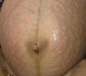 Pregnancy and Skin | SpringerLink