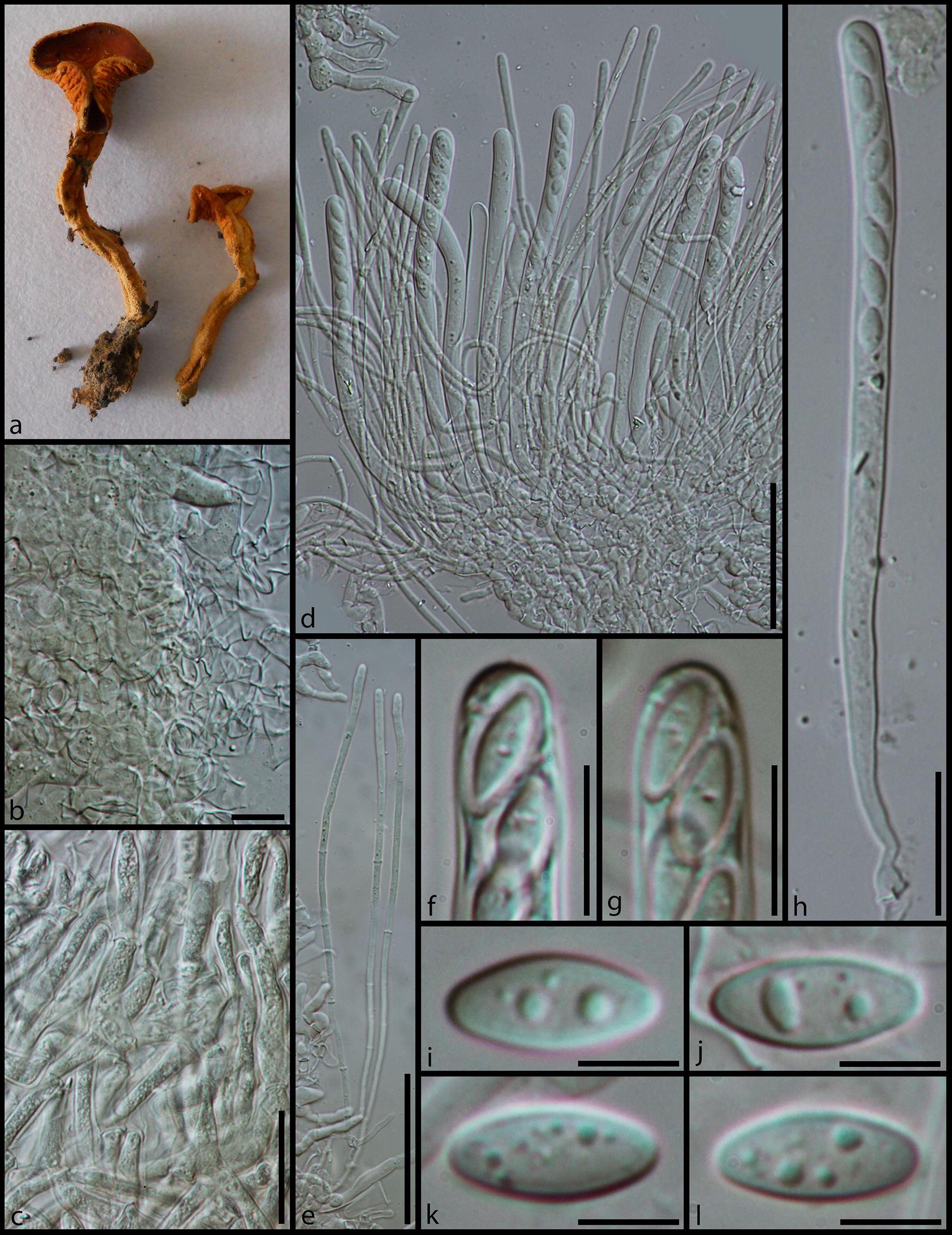 Taxonomy And Phylogeny Of Operculate Discomycetes Pezizomycetes Austin Flats Laken Beige 38