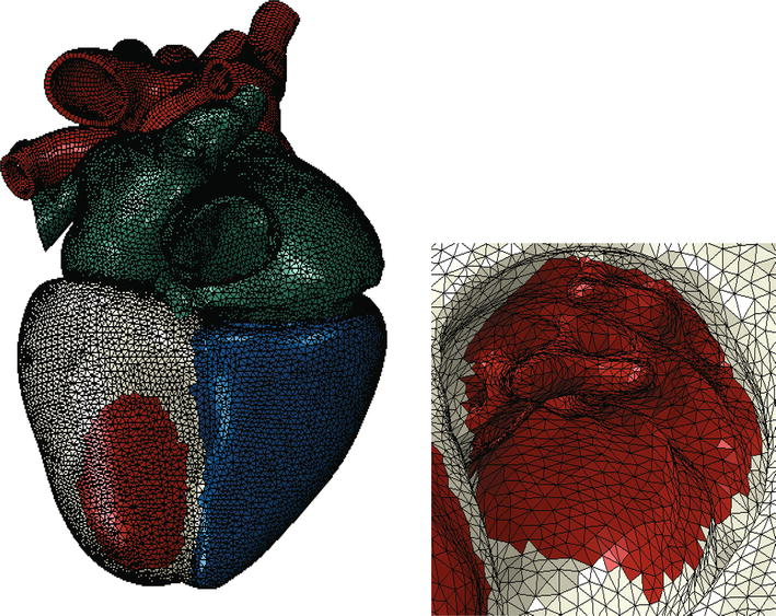 Human Cardiac Function Simulator for the Optimal Design of a Novel