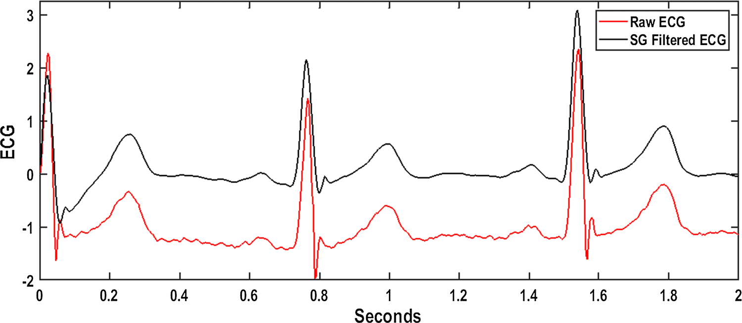 Novel T-wave Detection Technique with Minimal Processing and RR