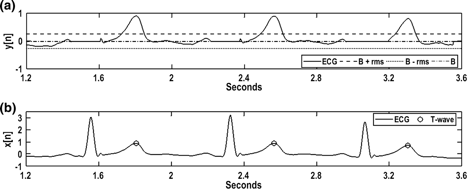 Novel T-wave Detection Technique with Minimal Processing and
