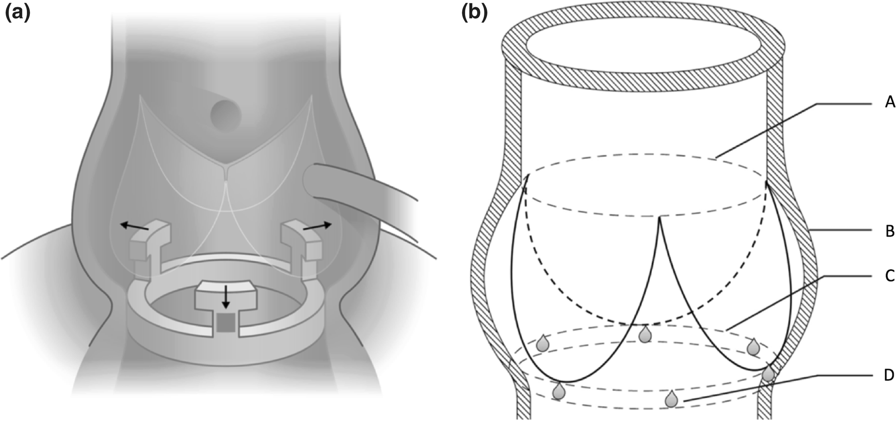Asymmetric Dynamics of the Native Aortic Annulus Evaluated