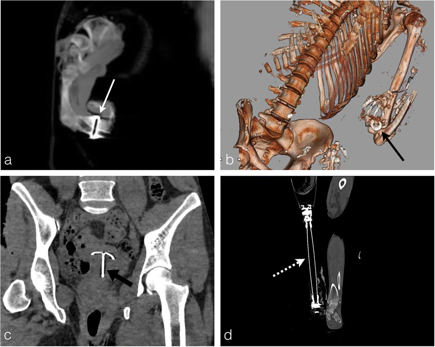 Burned bodies: post-mortem computed tomography, an essential