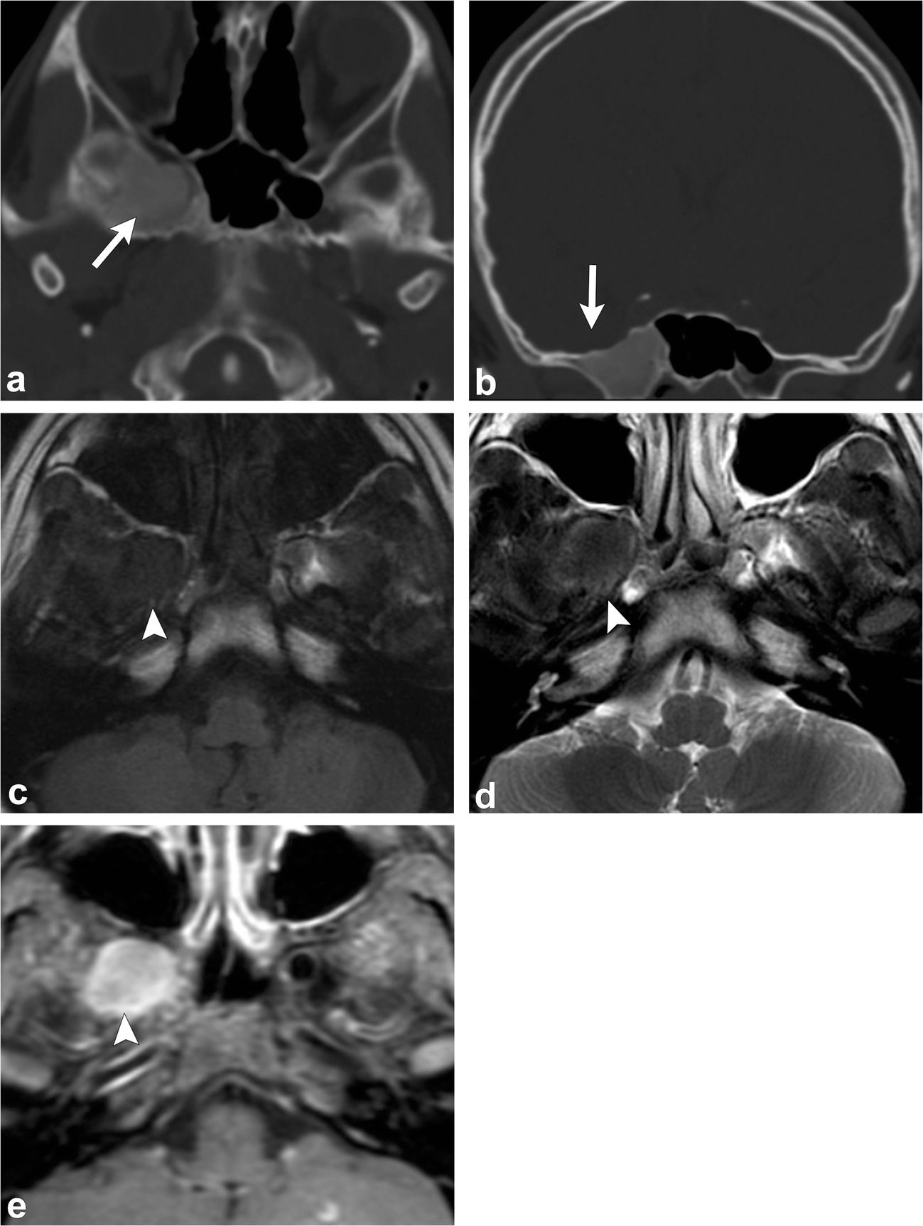 Radiological review of skull lesions | SpringerLink