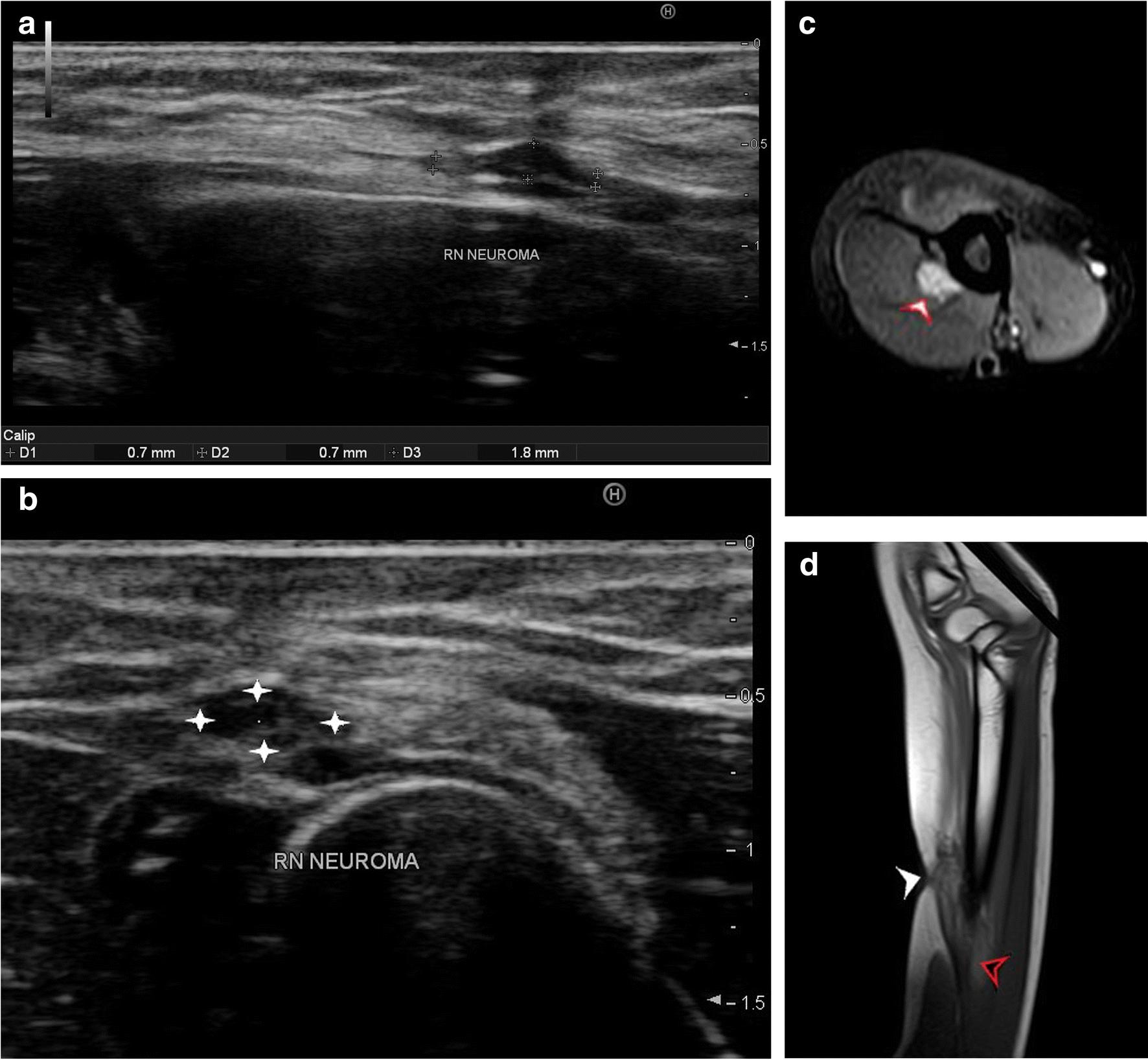 A panorama of radial nerve pathologies- an imaging diagnosis