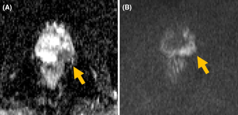 Multiparametric MRI and radiomics in prostate cancer: a review