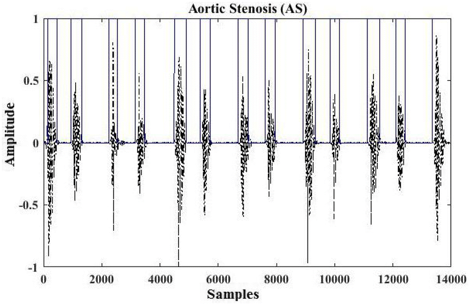An efficient heart murmur recognition and cardiovascular