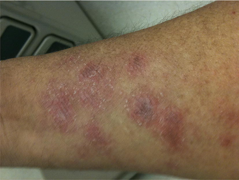 Remission of aggressive autoimmune disease (dermatomyositis) with