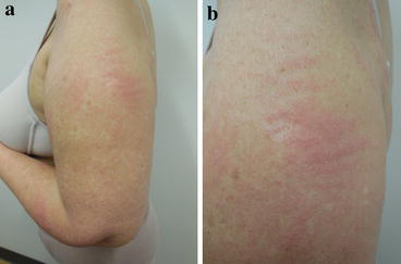 Trastuzumab-Associated Flagellate Erythema: Report in a Woman with