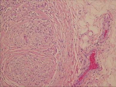 Atypical Sarcoidosis Diagnosed By Bone Marrow Biopsy