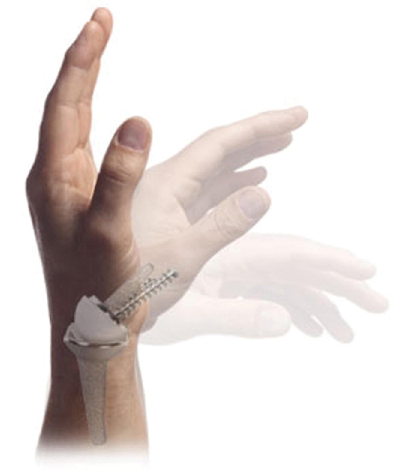 Endoprothetische Versorgung am rheumatischen Handgelenk | SpringerLink