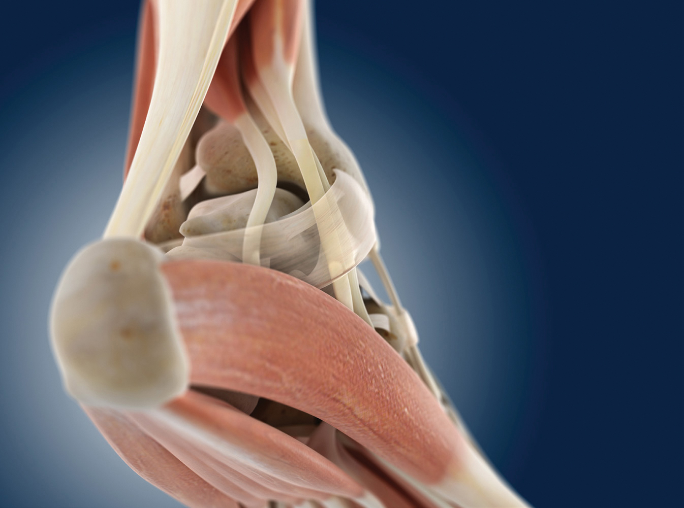 Achillessehnenruptur: Nach Naht entwickelt die Wade mehr Kraft ...