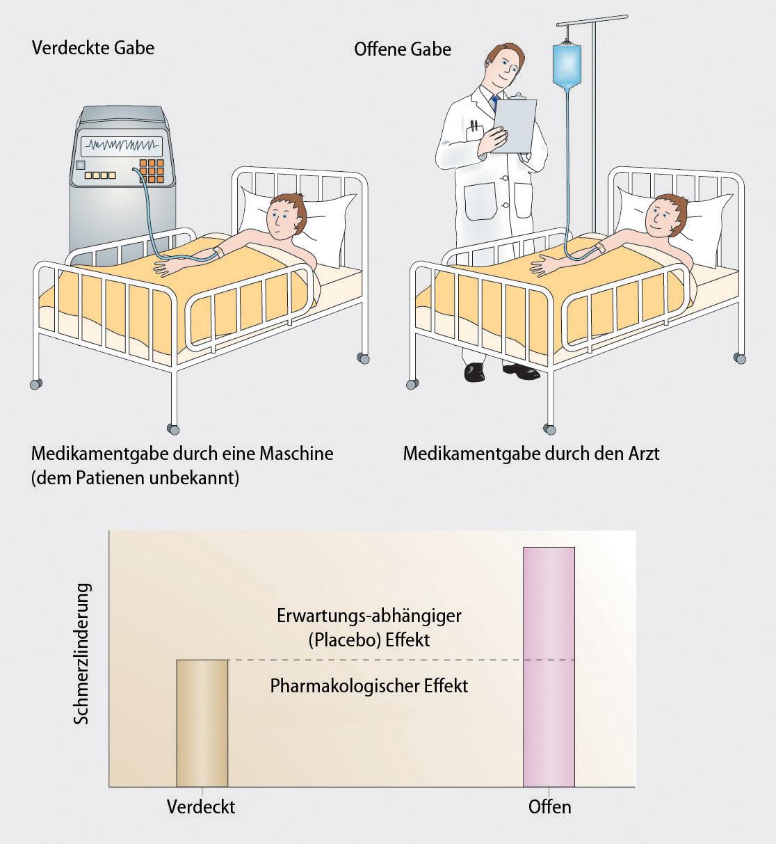 Placeboeffekte und ihre Implikationen in der Neurologie   SpringerLink