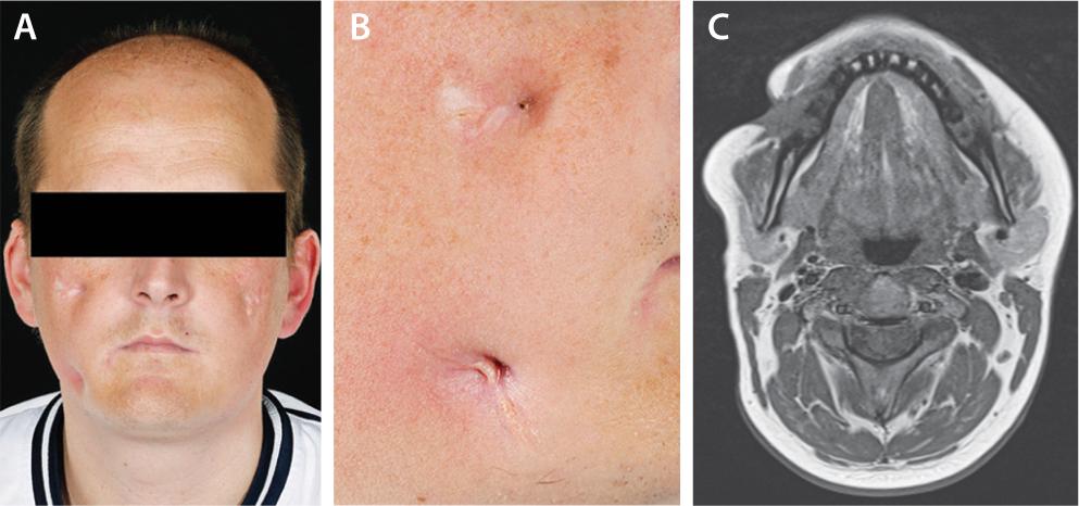 Die Mundhöhle gehört zum Magen-Darm-Trakt | SpringerLink