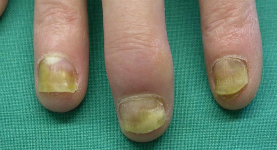 Die Hände des Patienten — ein intensiver Blick lohnt