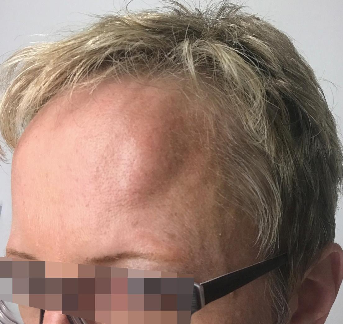 Seltsam an- und abschwellende Stirn-Beule | SpringerLink