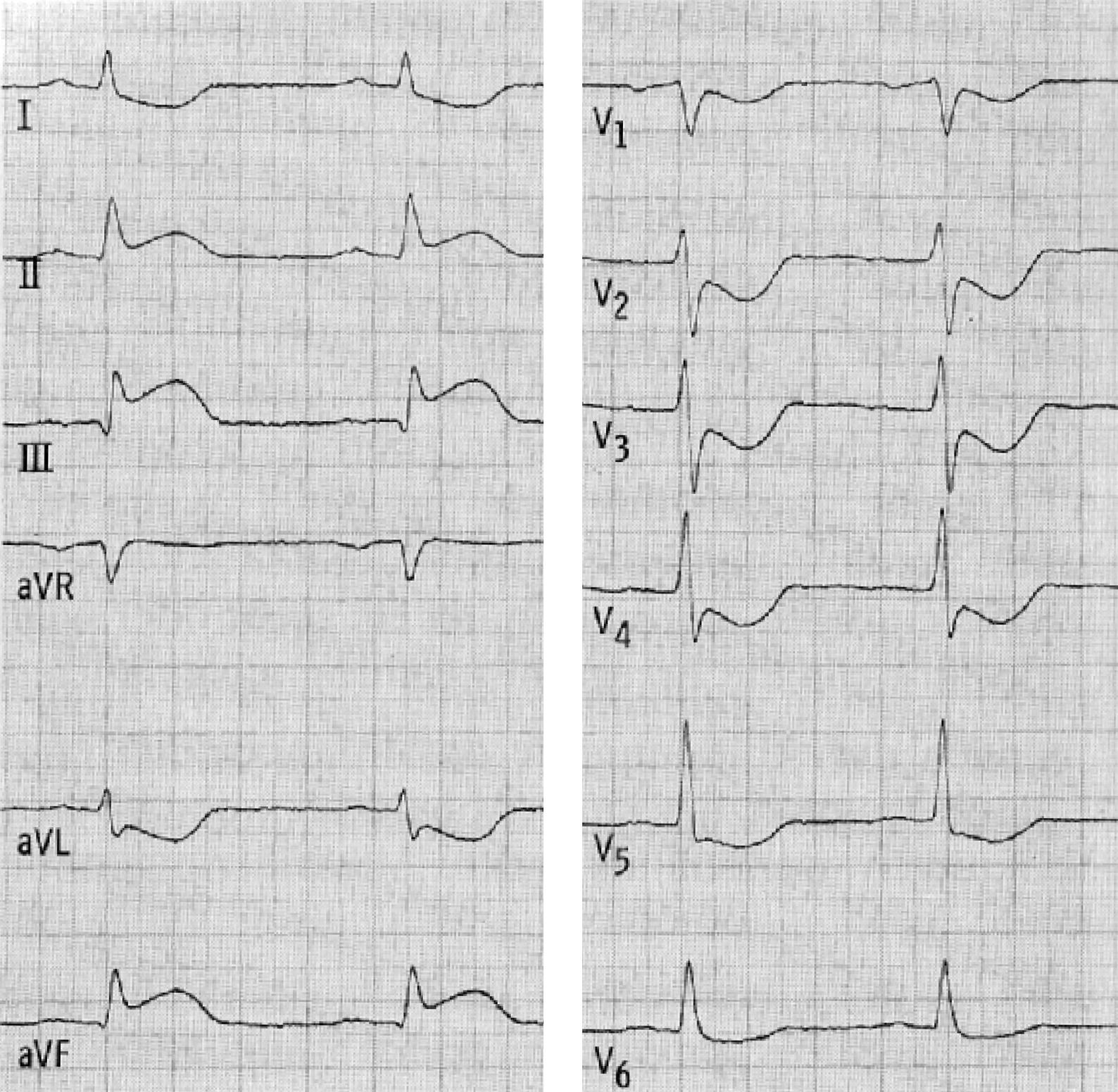 Hat Der Patient Einen Herzinfarkt Springerlink