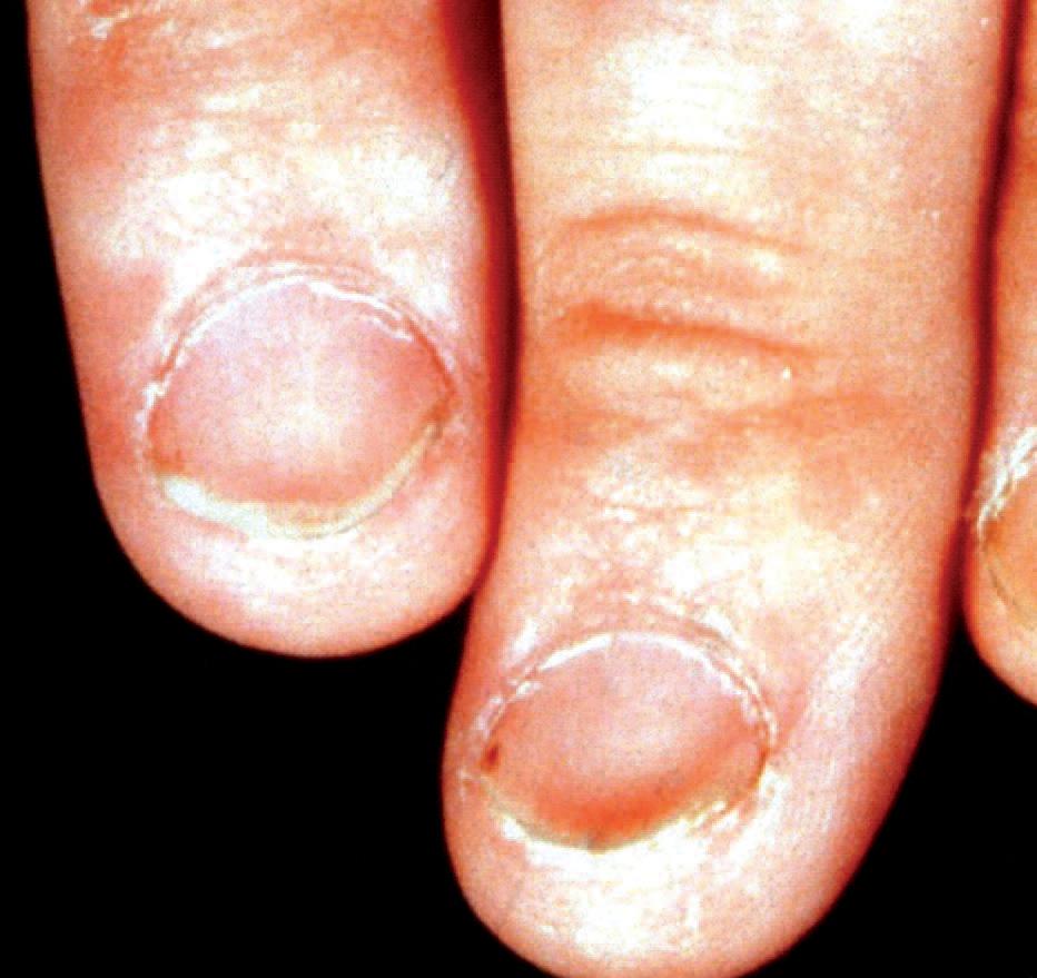"""Was die """"Muster"""" auf den Nägeln verraten   SpringerLink"""