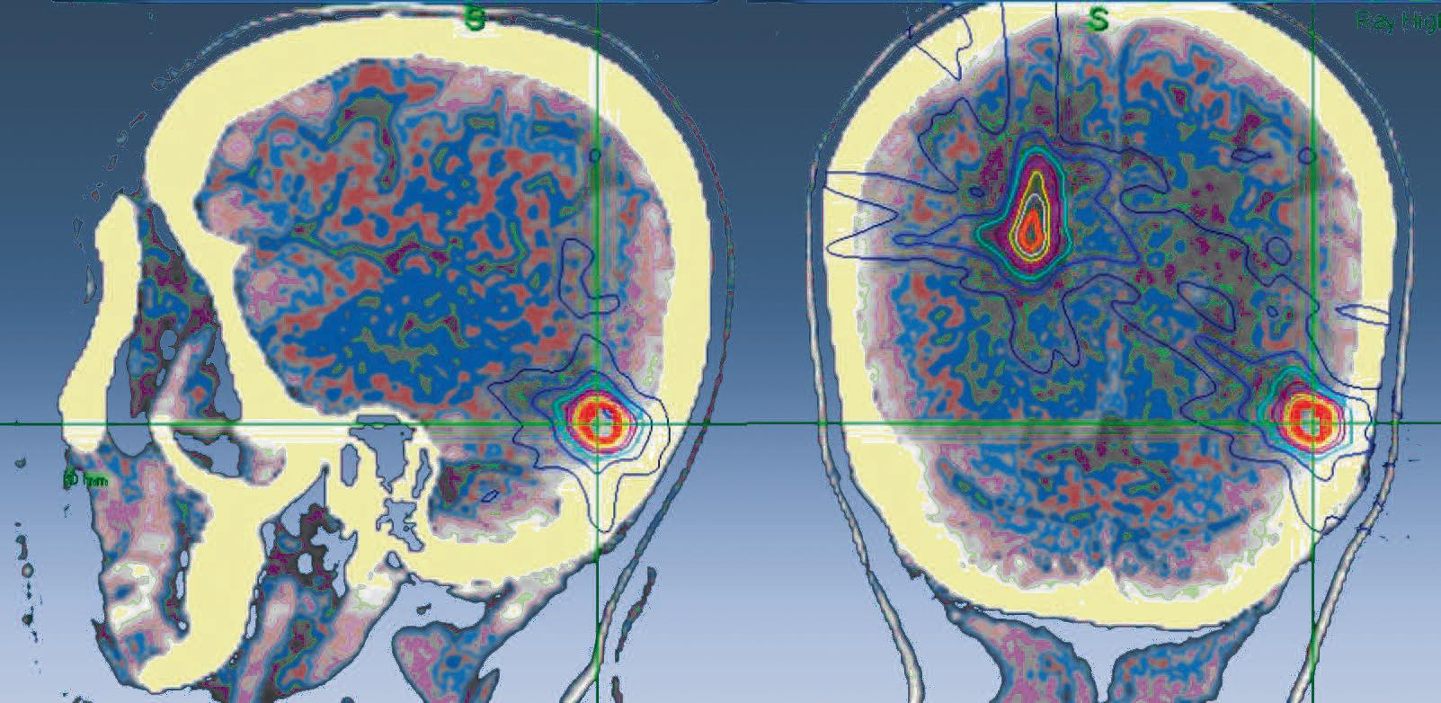 Hochpräzisionsstrahlentherapie und Radiochirurgie   SpringerLink
