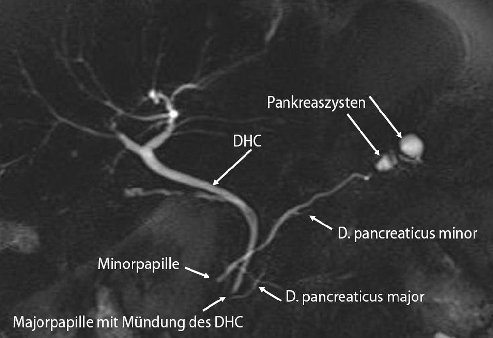 Beste Pankreas Divisum Anatomie Galerie - Menschliche Anatomie ...