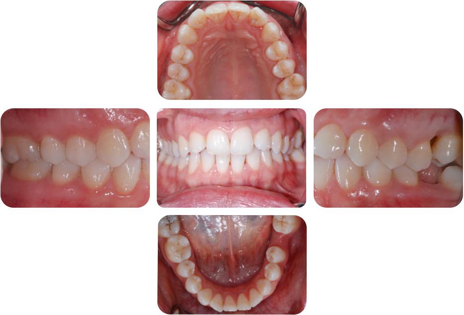 Der spezielle Fall: Therapie einer schweren Parodontitis | SpringerLink
