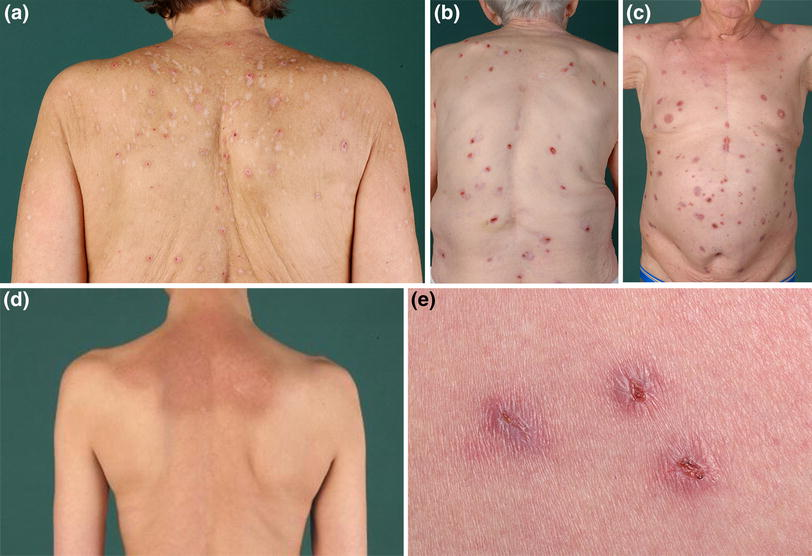 Chronic Pruritus in the Absence of Skin Disease