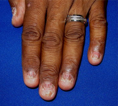 Therapeutics for Adult Nail Psoriasis and Nail Lichen Planus: A ...