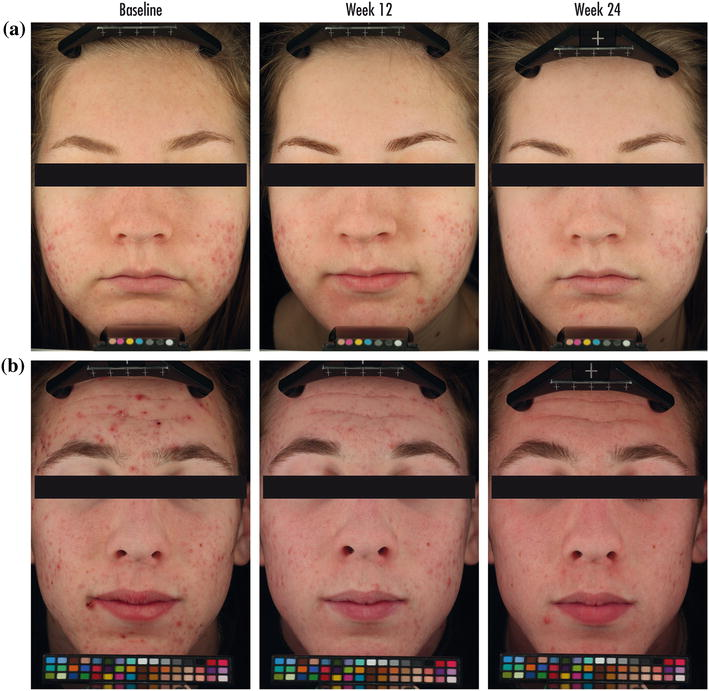 Prevention and Reduction of Atrophic Acne Scars with Adapalene 0 3