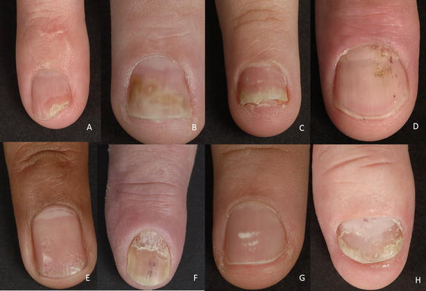 Nail Psoriasis: A Review of Treatment Options | SpringerLink