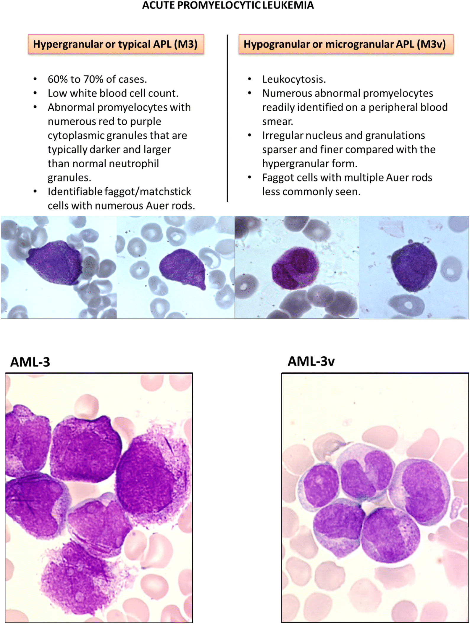 Acute Promyelocytic Leukemia: A History over 60 Years—From