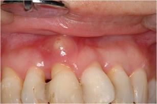 periodontal abscess - Isken kaptanband co