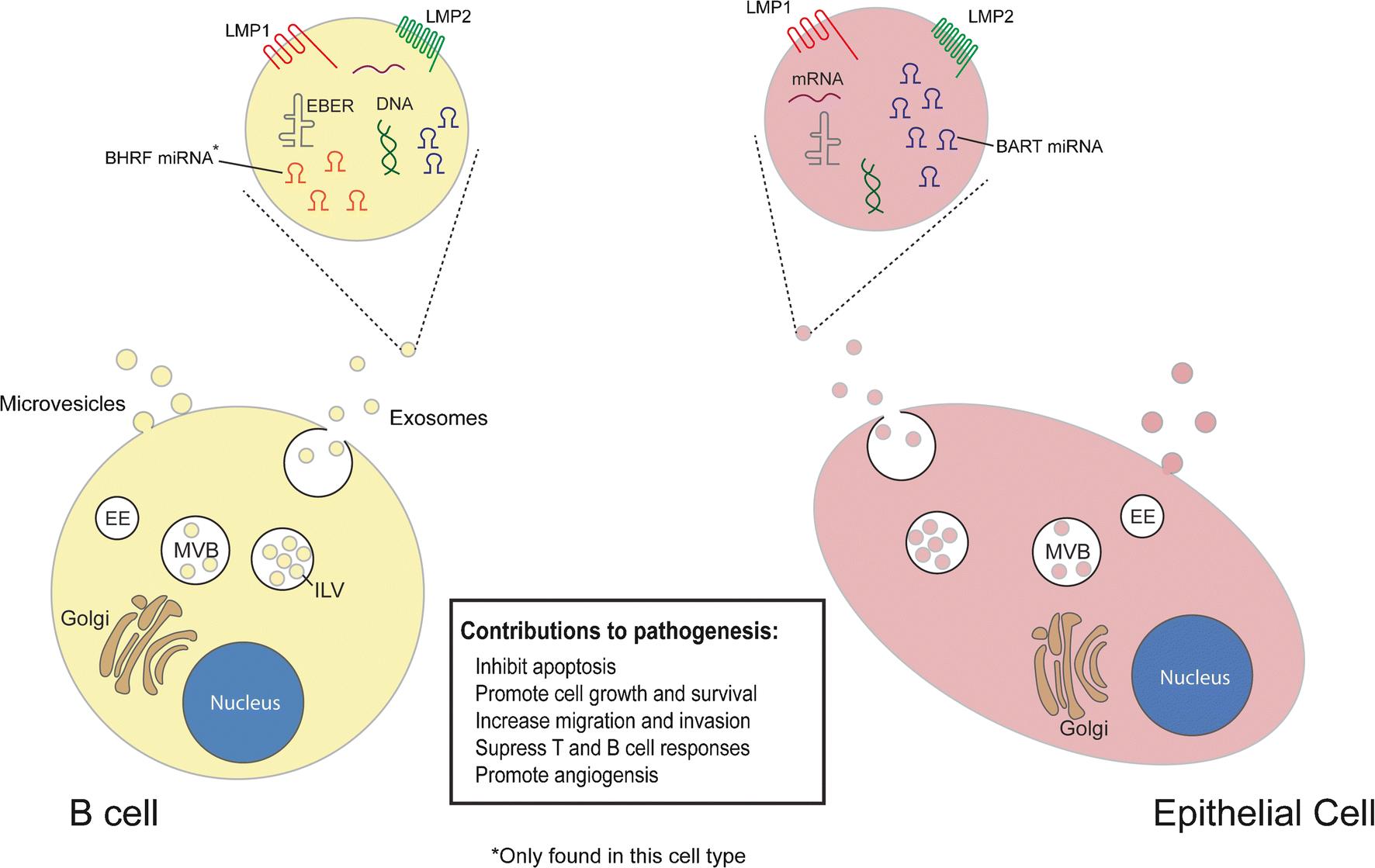 Extracellular Vesicles in Epstein-Barr Virus Pathogenesis