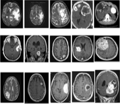 Identification and classification of brain tumor MRI images