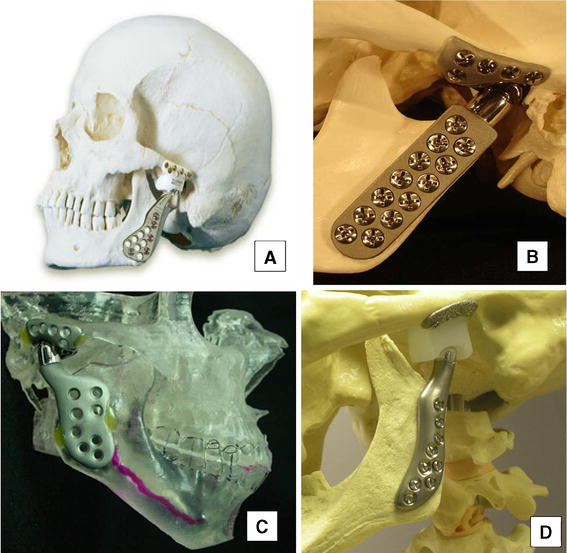Temporomandibular Joint Replacement Device Research Wear And