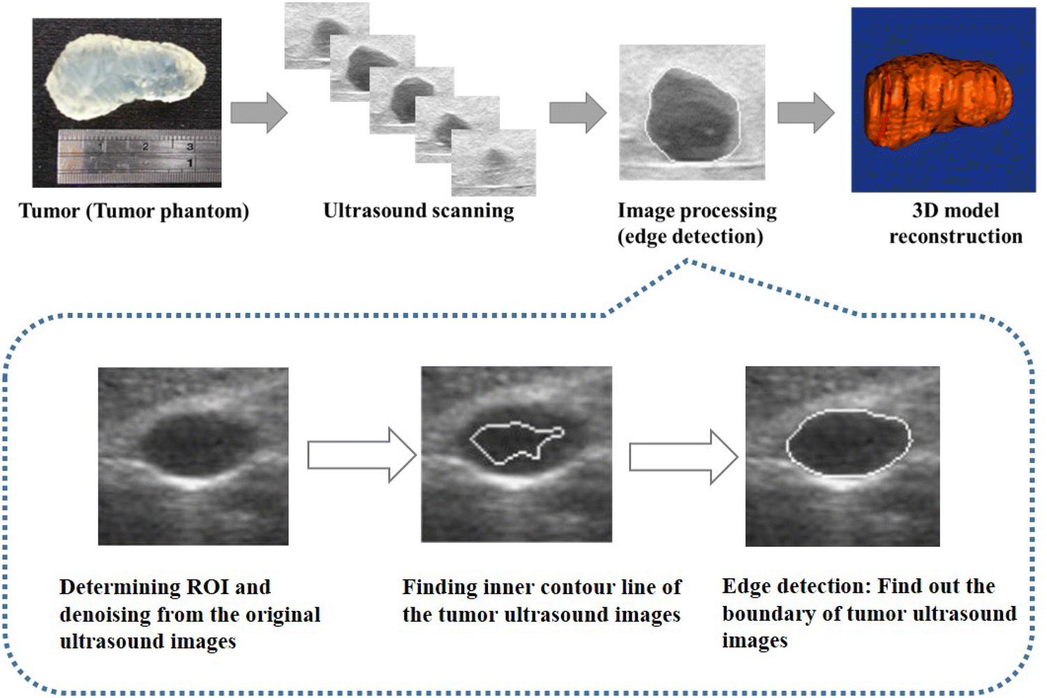 An Ultrasound-Guided Robotic HIFU Ablation System with Respiration