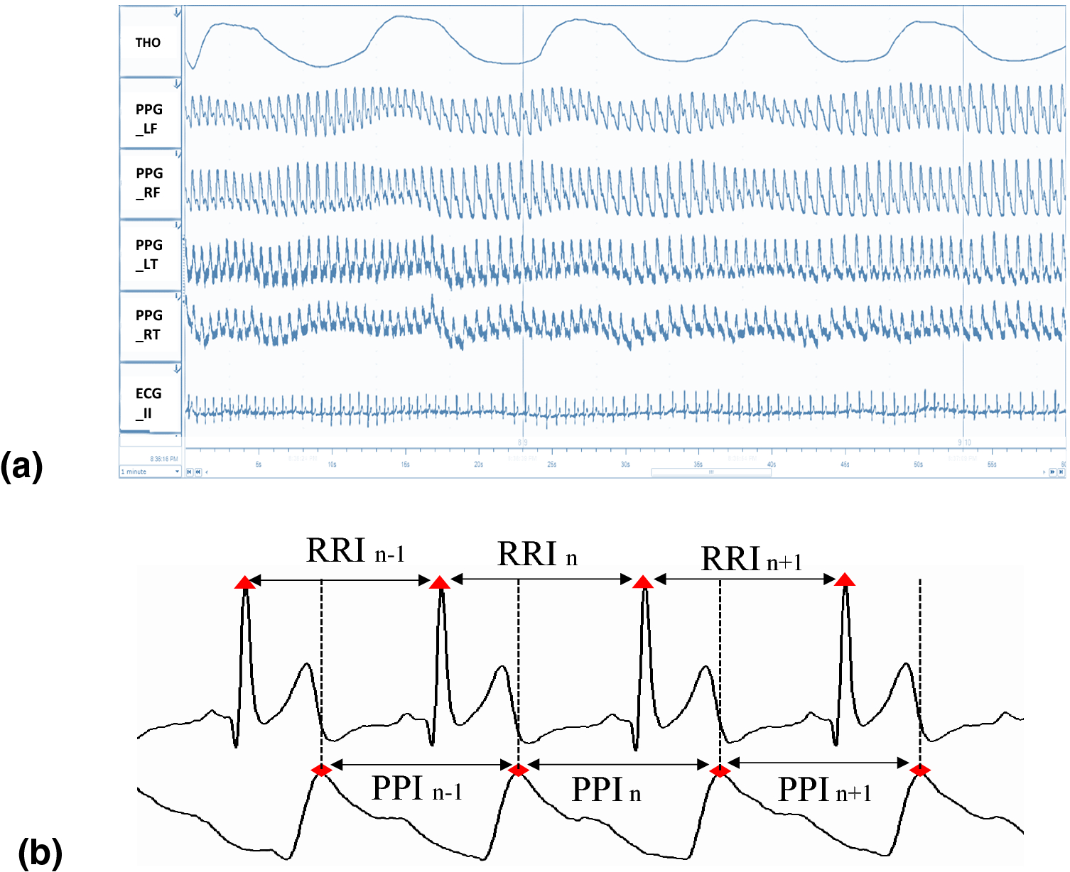 Evaluation of Coherence Between ECG and PPG Derived