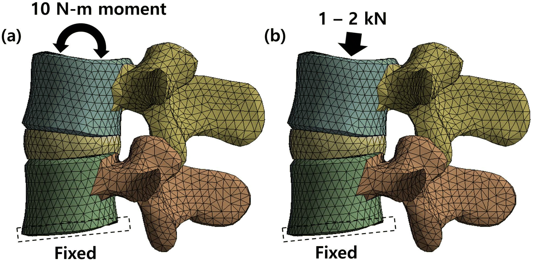 Design Of A Lumbar Interspinous Fixation Device For