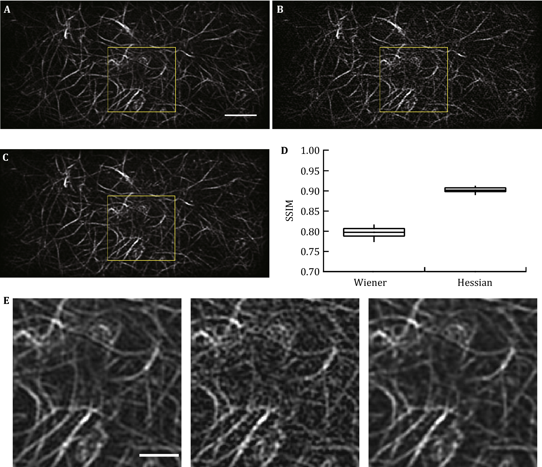 A protocol for structured illumination microscopy with