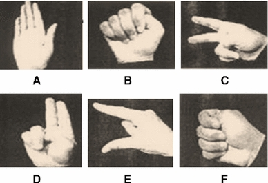Recent methods in vision-based hand gesture recognition