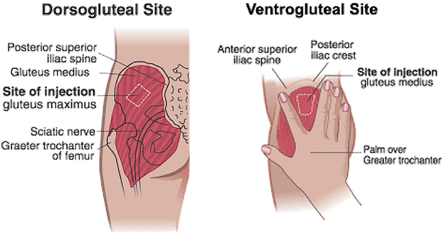 A narrative review of the success of intramuscular gluteal