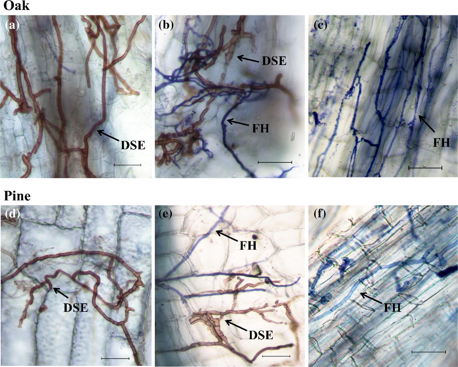Contribution of root-associated microbial communities on