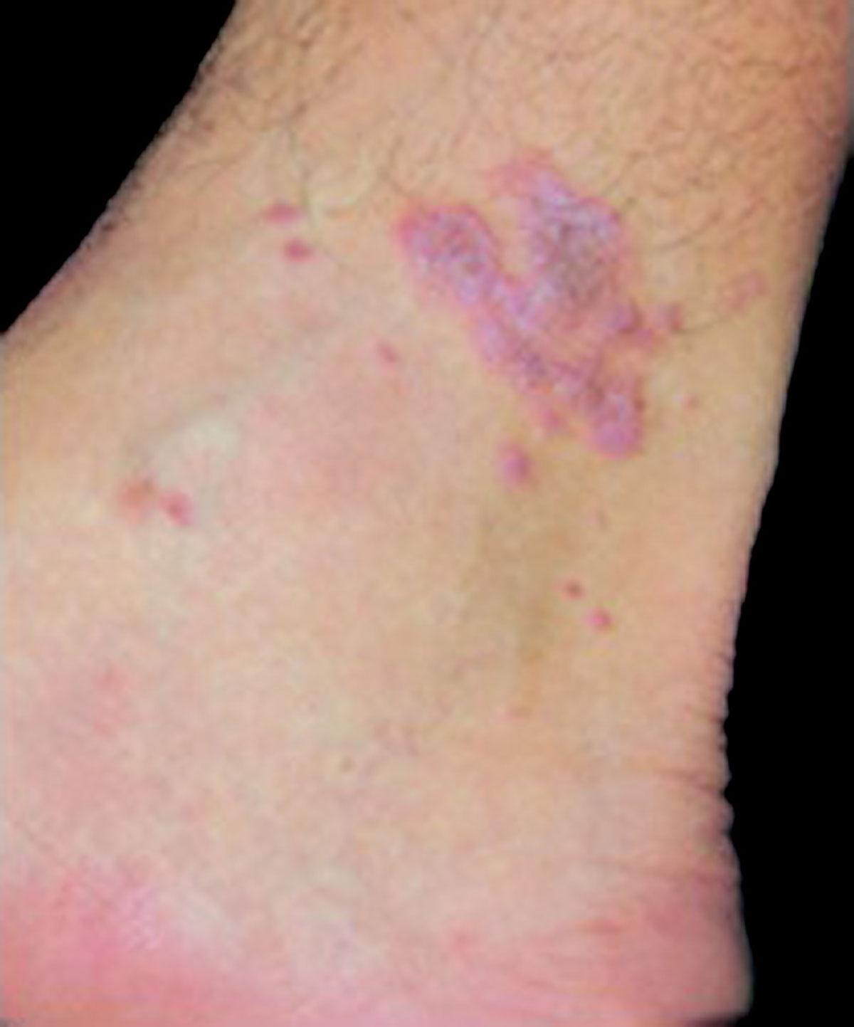 Dermatology For The Allergist