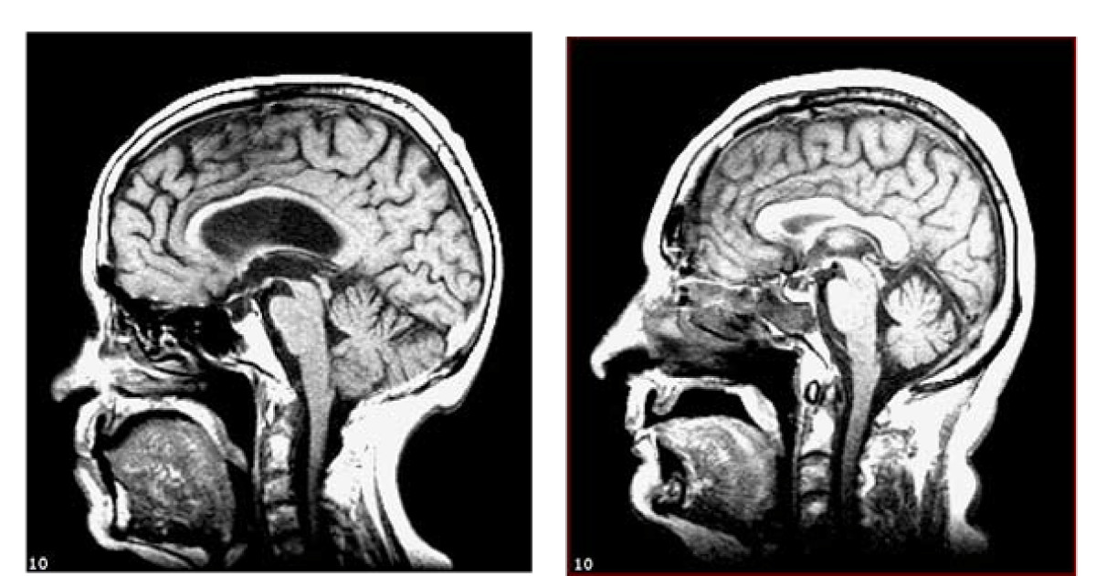 Maximum (prior) brain size, not atrophy, correlates with cognition ...